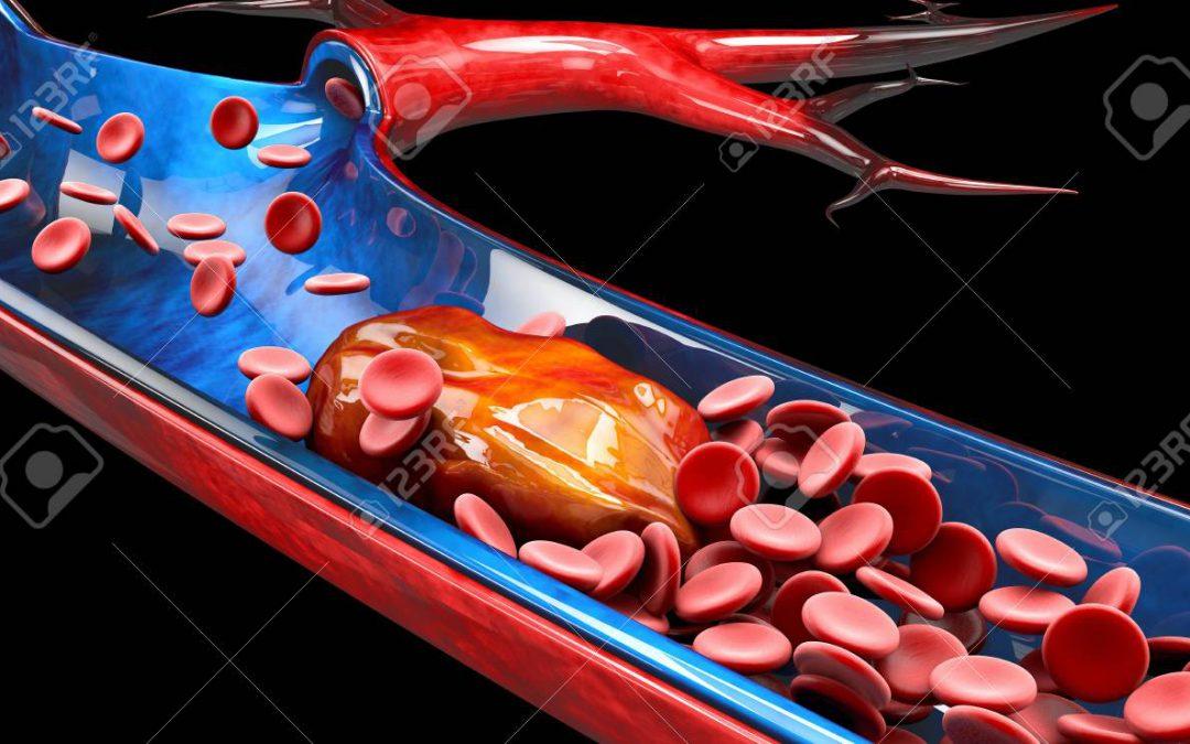 เส้นเลือดอุดตัน